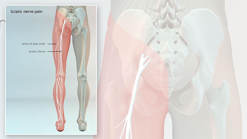 medical-3d-nerve-pain-illustration-2