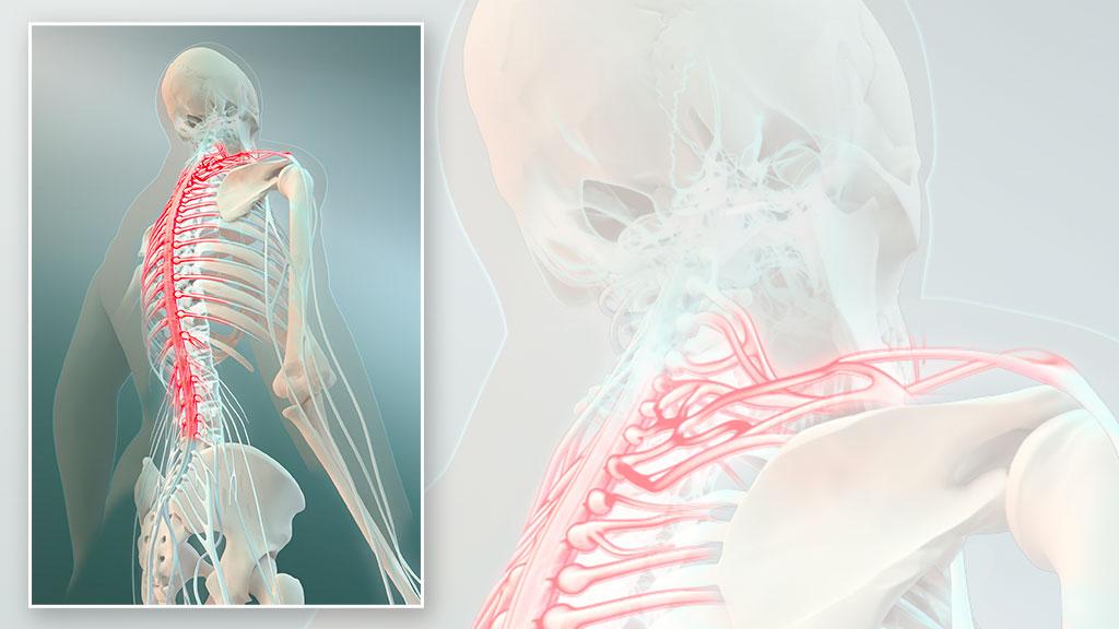 Steve Santer - 3D illustration medical - Nerve Pain